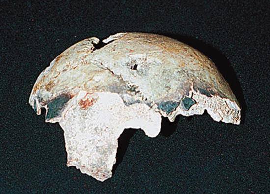 Череп, который, как считалось, принадлежал Адольфу Гитлеру, на самом деле был черепом 40-летней женщины