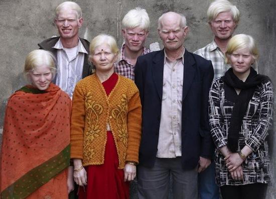 Самая большая в мире семья альбиносов насчитывает 10 человек