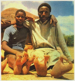25% жителей Зимбабве рождаются всего с двумя пальцами на ногах