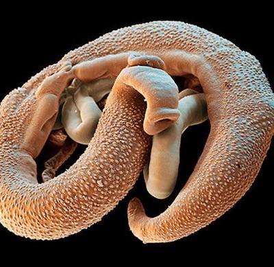 черви паразиты теле человека