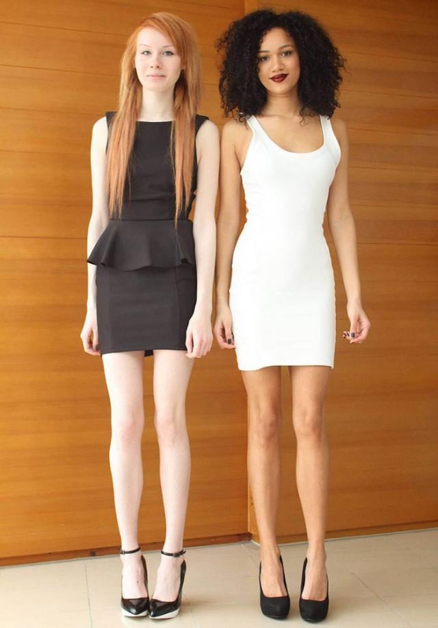 Разноцветные близнецы: уникальные сёстры, принадлежащие разным расам