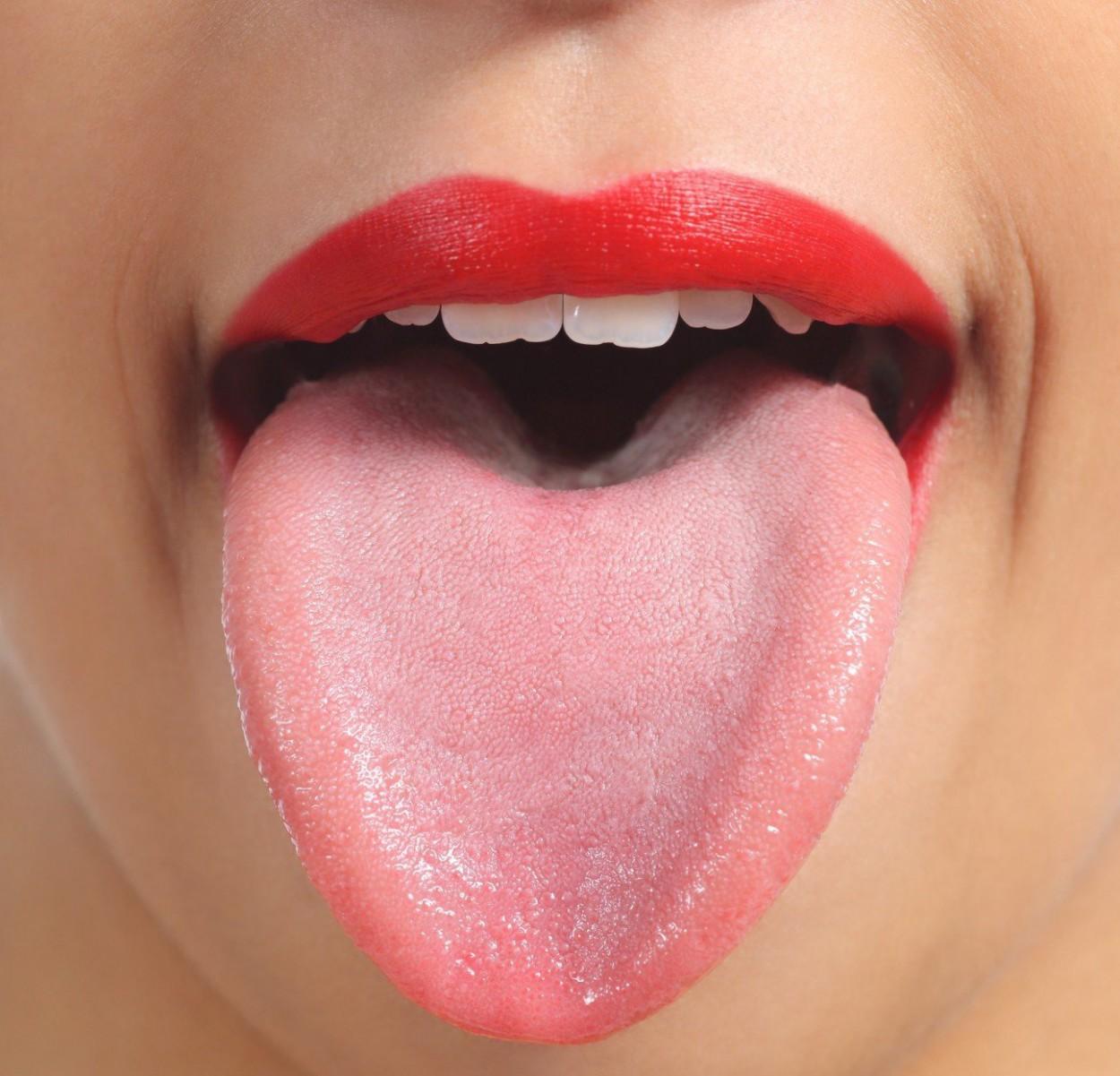 Какого цвета язык у здорового человека