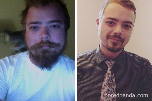 Вот как меняется внешность человека, когда он бросает пить