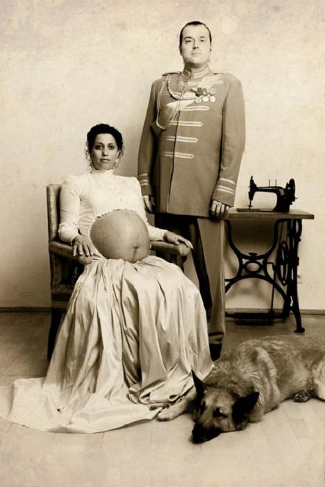 Вот какие безумные рекомендации давали врачи беременным женщинам полтора века назад