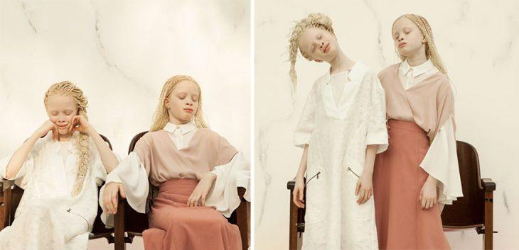 Близнецы альбиносы изБразилии покорили мир моды своей странной внешностью