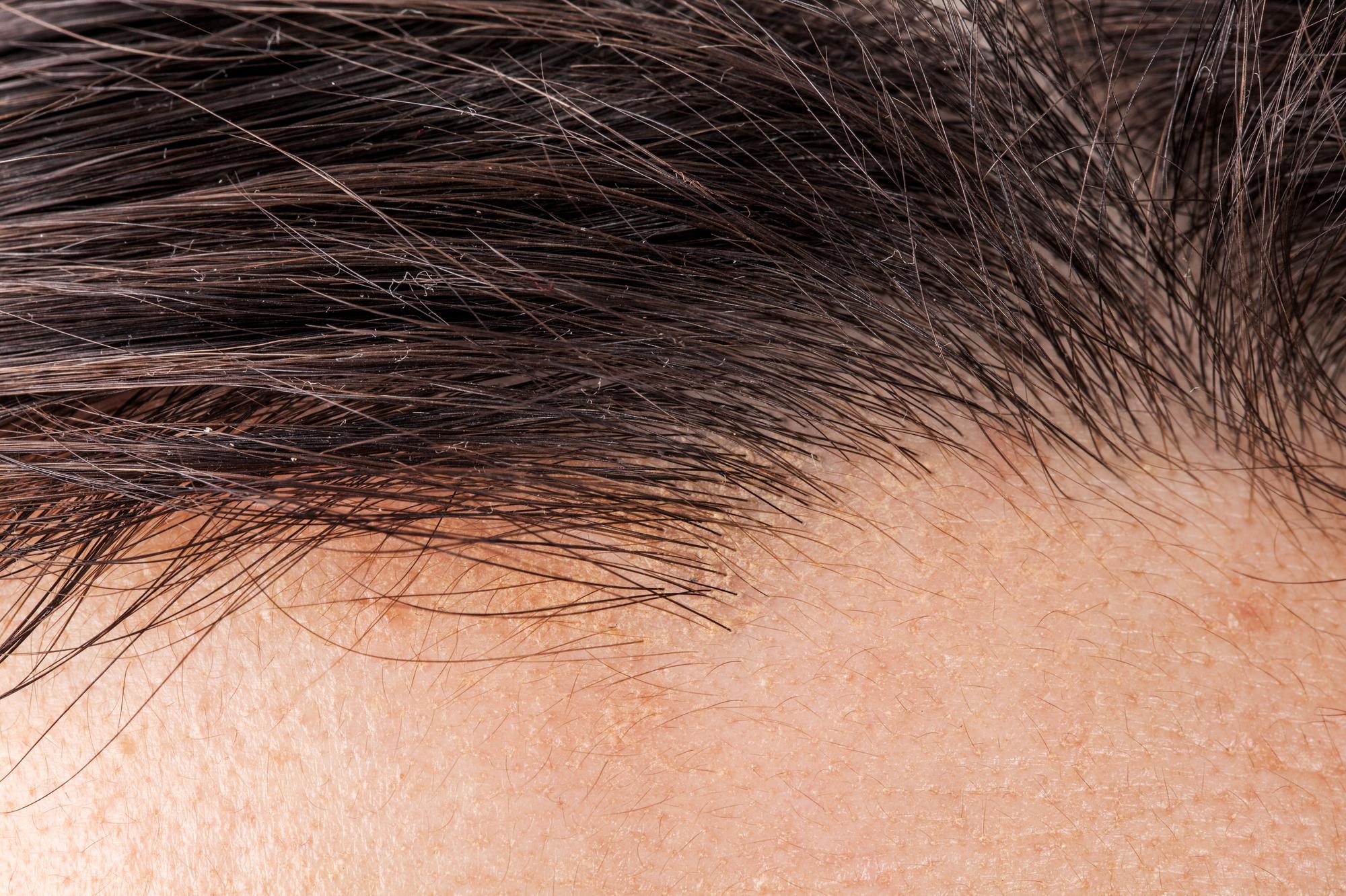 картинки три волосинки на голове руководством солдатова