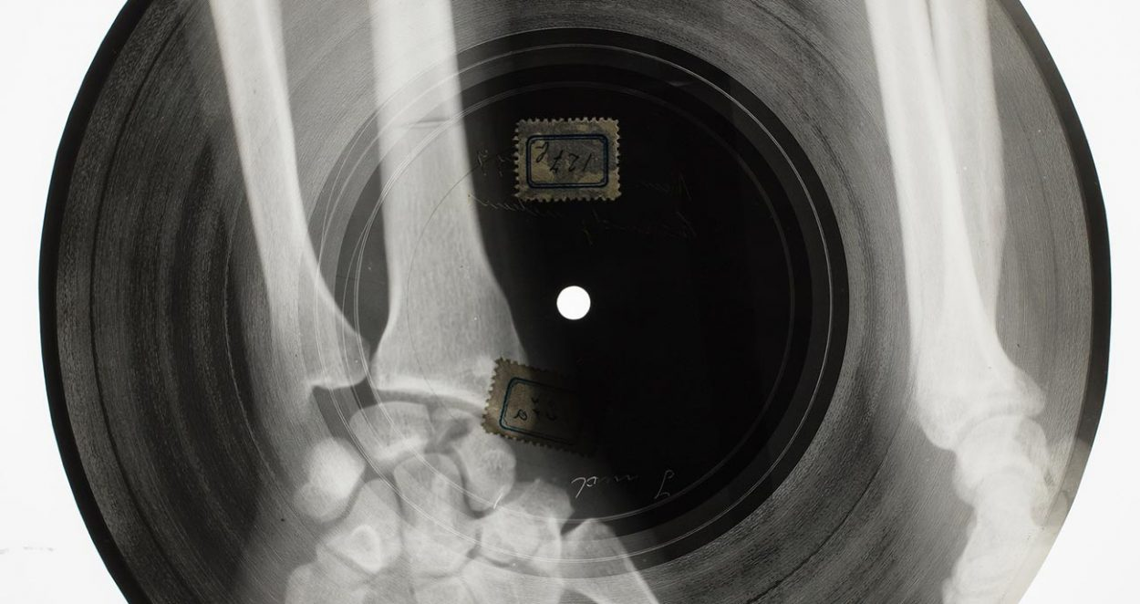 Грампластинка из рентгеновского снимка