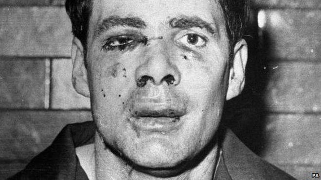 Похититель Дональд Нельсон после того, как его схватила полиция