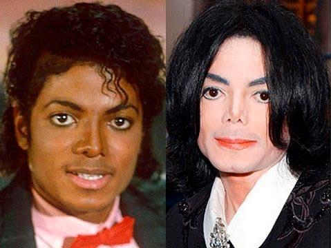 Изменение цвета кожи Майкла Джексона