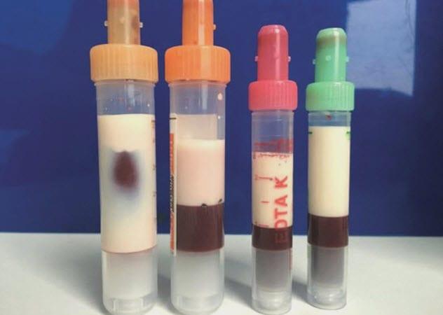 Образцы белой крови пациента строгающего от ожирения