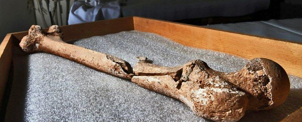Бедренная кость, пробитая пулей