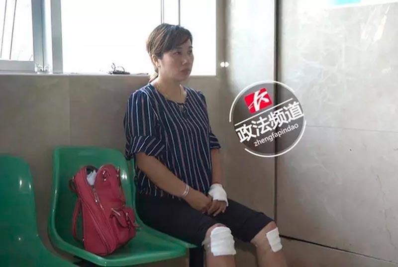 Ю в больнице с полученными травмами