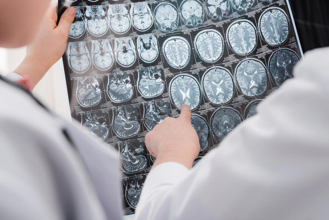 Рентгеновсккий снимок головного мозга