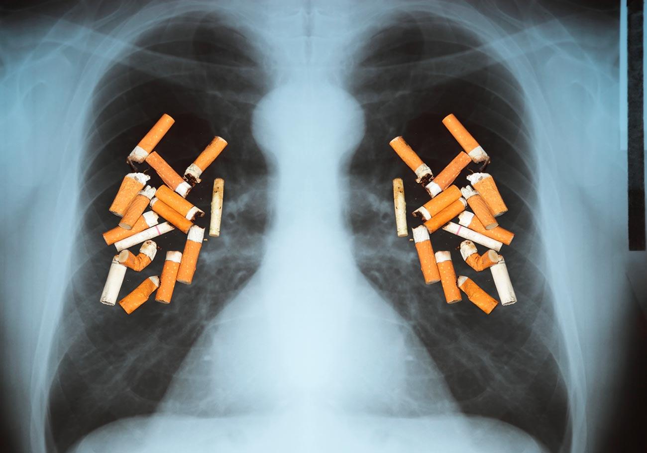 Очистятся лилёгкие после того, как человек бросил курить?