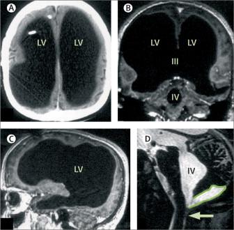 Жизнь без мозга: истории людей, которым удалили важнейшие части мозга, ноони прекрасно живут ибезних