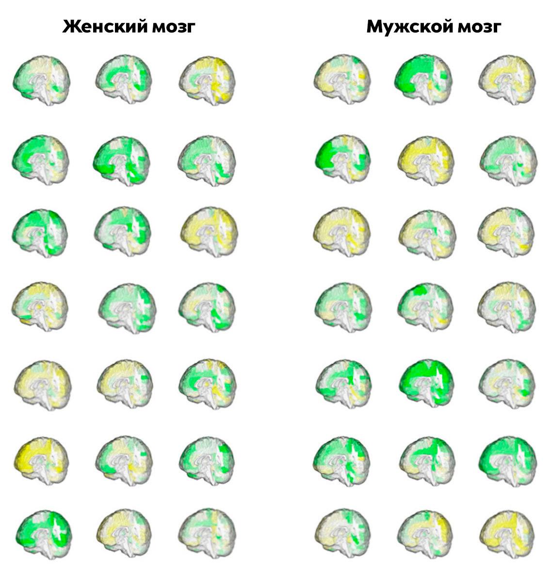 Неттакого понятия, как «мужской» и«женский» мозг