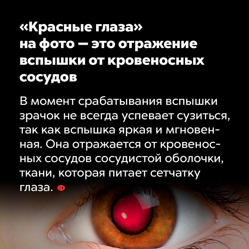 «Красные глаза» нафото — это отражение вспышки откровеносных сосудов. В момент срабатывания вспышки зрачок не всегда успевает сузиться, так как вспышка яркая и мгновенная. Она отражается от кровеносных сосудов сосудистой оболочки ткани, которая питает сетчатку глаза.