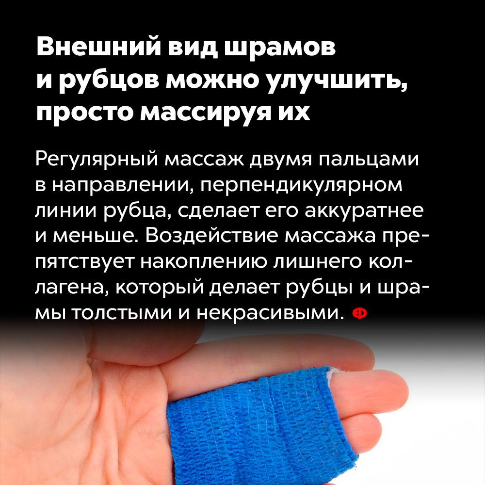 Внешний вид шрамов ирубцов можно улучшить, просто массируяих.