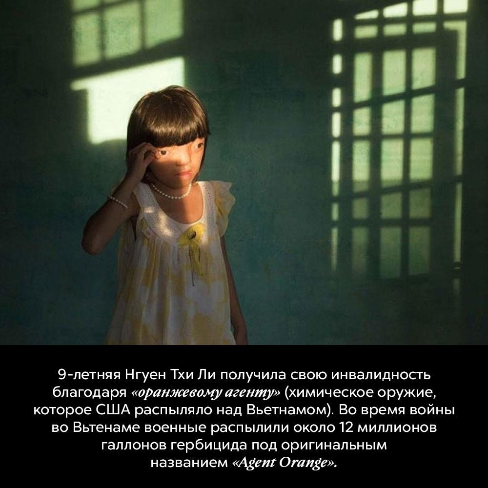 9-летняя Нгуен ТхиЛи получила свою инвалидность благодаря «оранжевому агенту» (химическое оружие, которое США распыляло над Вьетнамом).