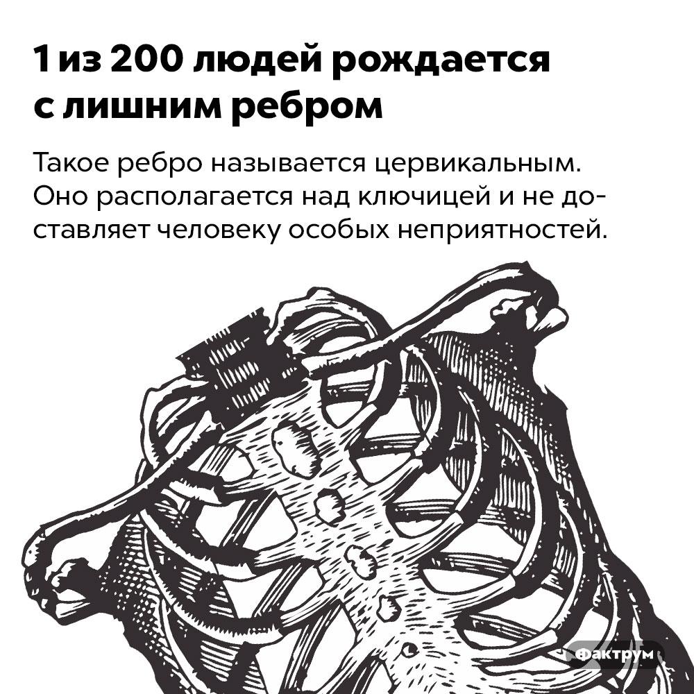 1из200людей рождается слишним ребром. Такое ребро называется цервикальным. Оно располагается над ключицей и не доставляет человеку особых неприятностей.