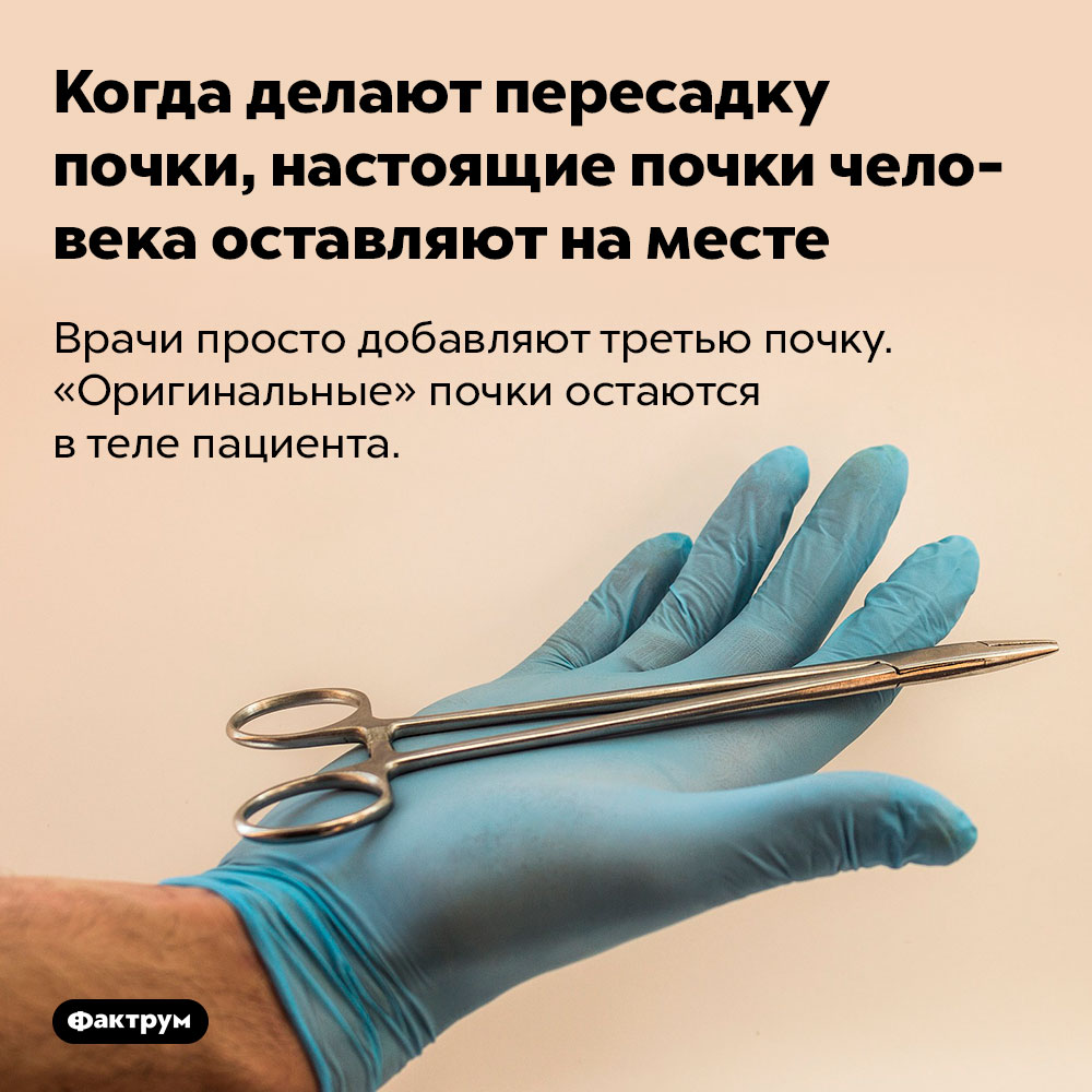 Когда делают пересадку почки, настоящие почки человека оставляют наместе. Врачи просто добавляют третью почку. «Оригинальные» почки остаются в теле пациента.
