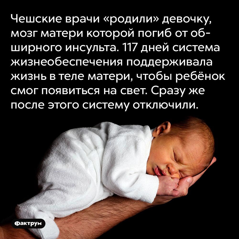 Чешские врачи «родили» девочку, мозг матери которой погиб от обширного инсульта. 117 дней система жизнеобеспечения поддерживала жизнь в теле матери, чтобы ребёнок смог появиться на свет. Сразу же после этого систему отключили.