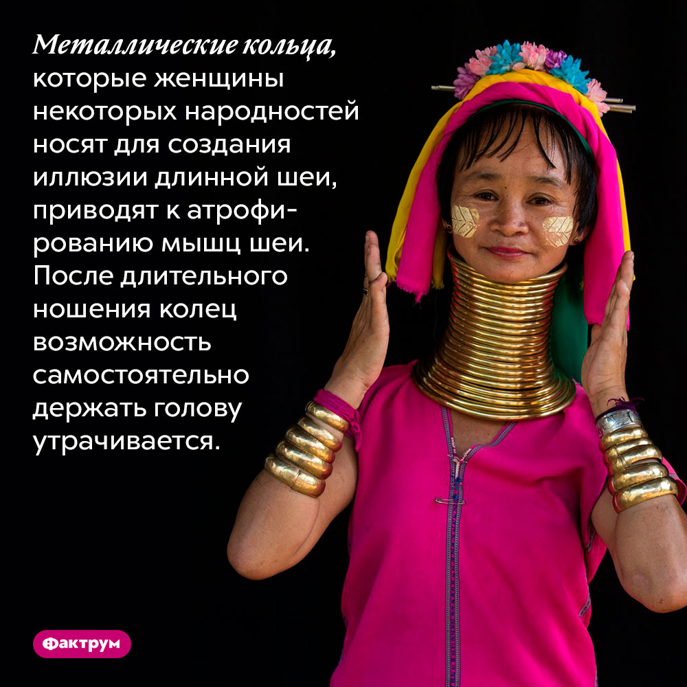 Шейные кольца приводят ктому, что мышцы шеи перестают держать голову. Металлические кольца, которые женщины некоторых народностей носят для создания иллюзии длинной шеи, приводят к атрофированию мышц шеи. После длительного ношения колец возможность самостоятельно держать голову утрачивается.