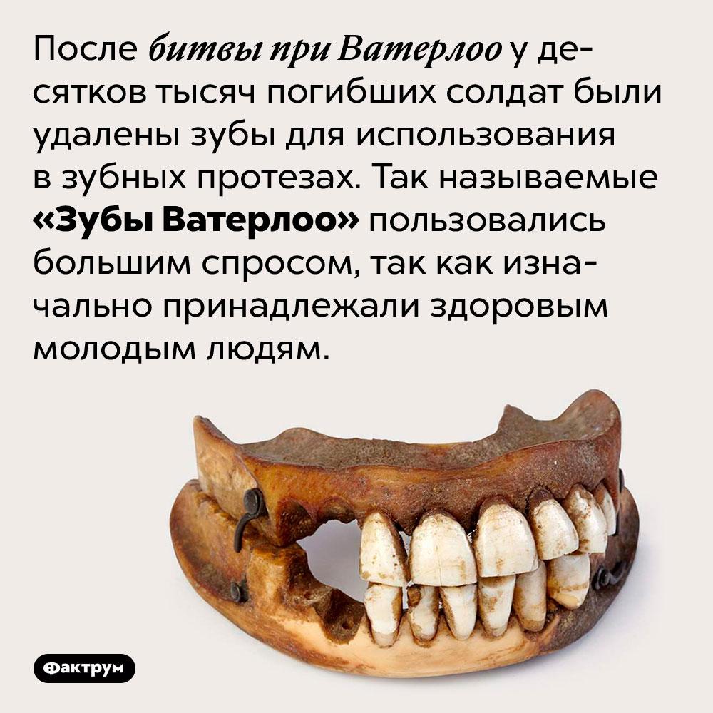 «Зубы Ватерлоо» — это зубы, удалённые у жертв битвы при Ватерлоо для изготовления зубных протезов. После битвы при Ватерлоо у десятков тысяч погибших солдат были удалены зубы для использования в зубных протезах. Так называемые «Зубы Ватерлоо» пользовались большим спросом, так как изначально принадлежали здоровым молодым людям.