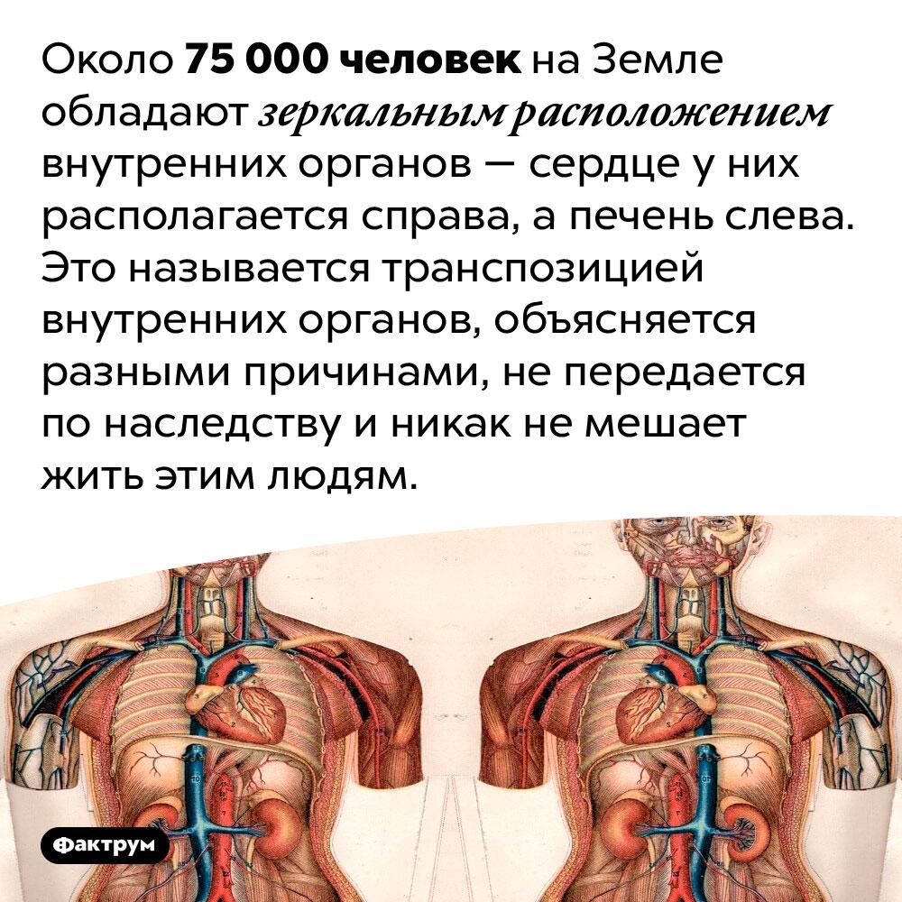 75000 человек вмире имеют зеркально расположенные внутренние органы. Около 75 000 человек на Земле обладают зеркальным расположением внутренних органов — сердце у них располагается справа, а печень слева. Это называется транспозицией внутренних органов, объясняется разными причинами, не передается по наследству и никак не мешает жить этим людям.