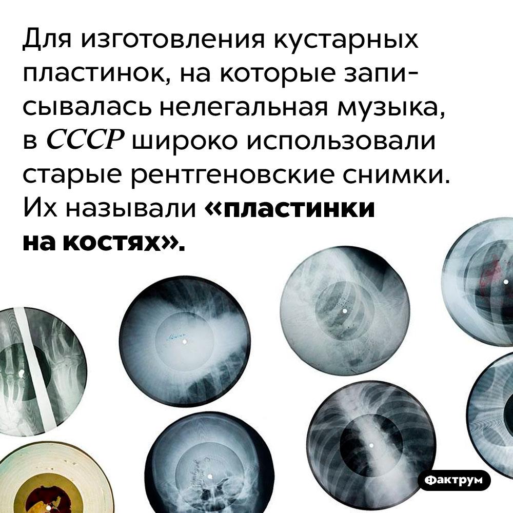 Что такое «пластинки накостях». Для изготовления кустарных пластинок, на которые записывалась нелегальная музыка, в СССР широко использовали старые рентгеновские снимки. Их называли «пластинки на костях».
