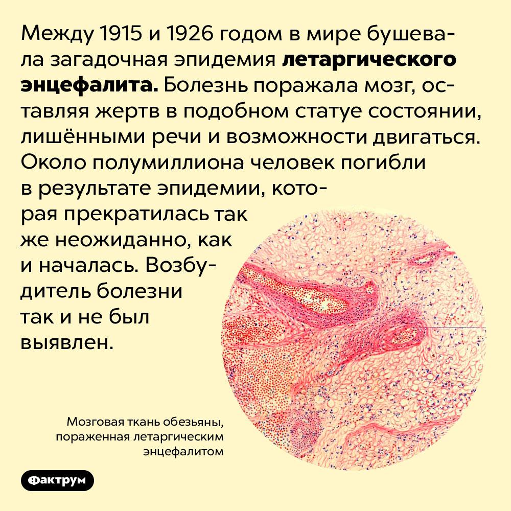 Загадочный летаргический энцефалит превращал людей встатуи. Между 1915 и 1926 годом в мире бушевала загадочная эпидемия летаргического энцефалита. Болезнь поражала мозг, оставляя жертв в подобном статуе состоянии, лишёнными речи и возможности двигаться. Около полумиллиона человек погибли в результате эпидемии, которая прекратилась так же неожиданно, как и началась. Возбудитель болезни так и не был выявлен.
