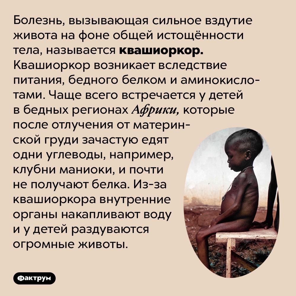 Почему уистощённых африканских детей большие животы. Болезнь, вызывающая сильное вздутие живота на фоне общей истощённости тела, называется квашиоркор. Квашиоркор возникает вследствие питания, бедного белком и аминокислотами. Чаще всего встречается у детей в бедных регионах Африки, которые после отлучения от материнской груди зачастую едят одни углеводы, например, клубни маниоки, и почти не получают белка. Из-за квашиоркора внутренние органы накапливают воду и у детей раздуваются огромные животы.