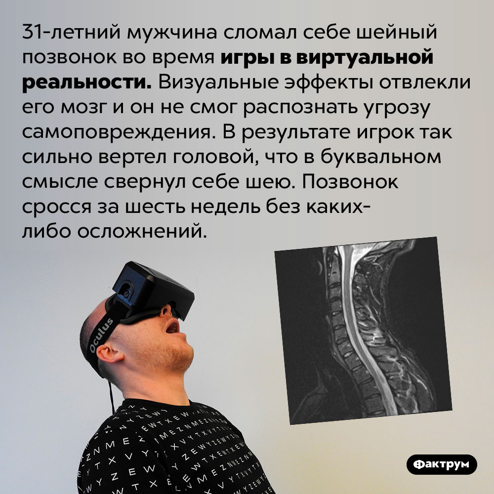 VR-игры могут свернуть вам шею. 31-летний мужчина сломал себе шейный позвонок во время игры в виртуальной реальности. Визуальные эффекты отвлекли его мозг и он не смог распознать угрозу самоповреждения. В результате игрок так сильно вертел головой, что в буквальном смысле свернул себе шею. Позвонок сросся за шесть недель без каких-либо осложнений.