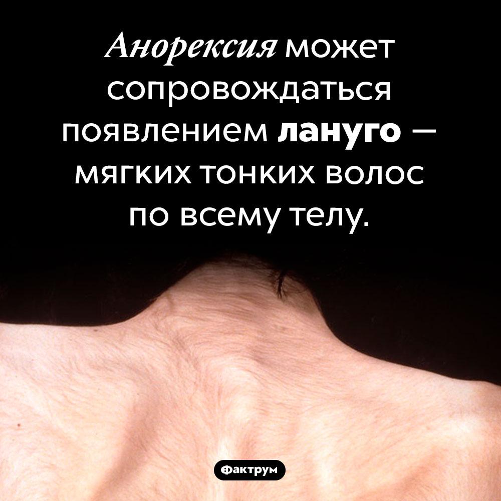 Странный симптом анорексии. Анорексия может сопровождаться появлением лануго — мягких тонких волос по всему телу.