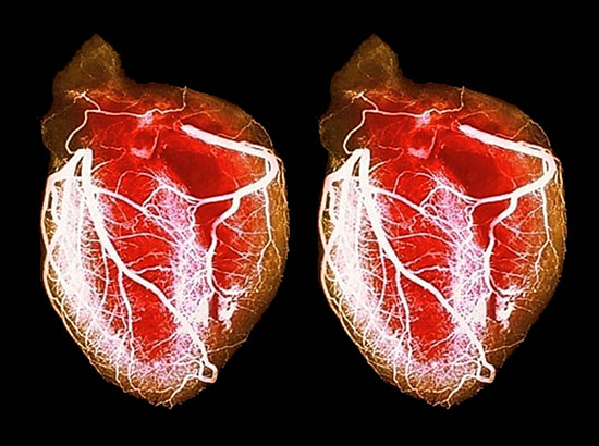 Существуют операции, при которых пациенту пересаживают 2-е сердце