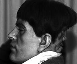 Существуют сведения о том, что в 19-ом в. в Англии жил человек со вторым лицом на затылке