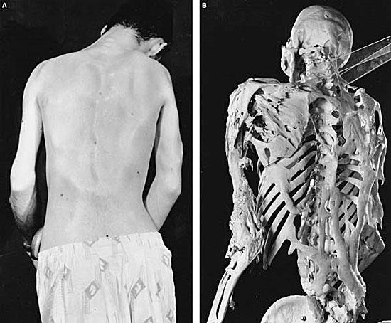 Существует болезнь, при развитии которой все ткани заменяются костями
