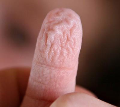 Кожа на кончиках мокрых пальцев морщится из-за непроизвольной реакции мозга