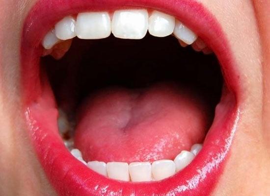 rak-polosti-rta-posle-oralnogo-seksa