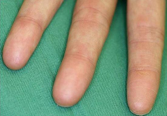 Есть люди без отпечатков пальцев
