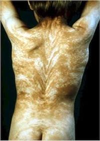 На коже человека есть невидимые полосы