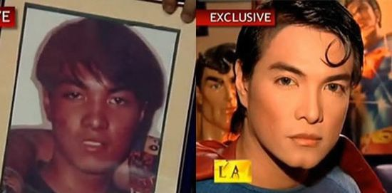 Филиппинец Герберт Чавес с помощью пластических операций сделал из себя Супермена
