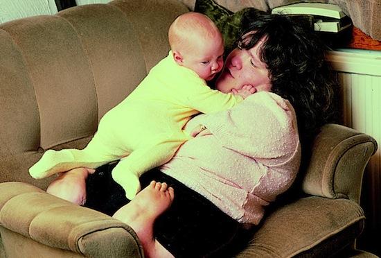 «Талидомидные дети» — люди, родившиеся с уродствами из-за приёма их матерями талидомида