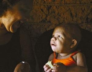 В Бразилии живёт девушка, которая в 30 лет физически и умственно развита на 9 месяцев