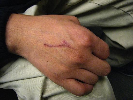 Es seguro e incluso útil lamer una herida.