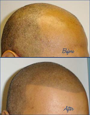 С помощью татуировки можно сделать имитацию волос на лысине