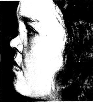 Гранулематоз Вегенера «сжимает» головы и «разжижает» носы, уши и другие части тела