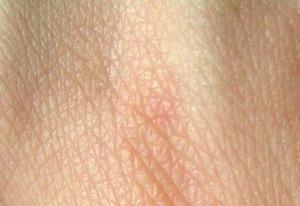 Наша кожа является водонепроницаемой из-за жира