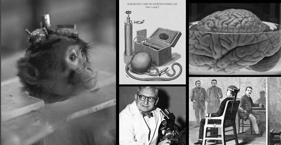 В 1970-х годах была проведена операция по пересадке головы обезьяны