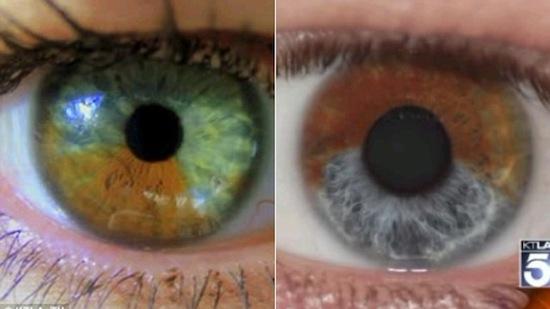 Карие глаза можно сделать голубыми